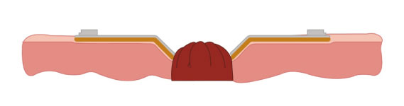 Base-Adesiva-Convexa-Rigida